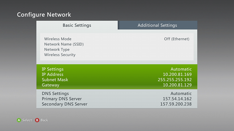 The Basic Settings tab is selected on the Configure Network screen, with IP Settings details highlighted.